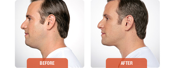 Kybella_beforeandafter_male_
