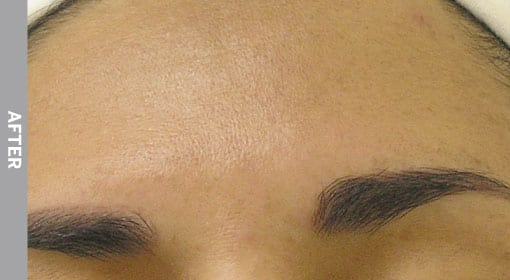hydrafacia Hyperpigmentation-After