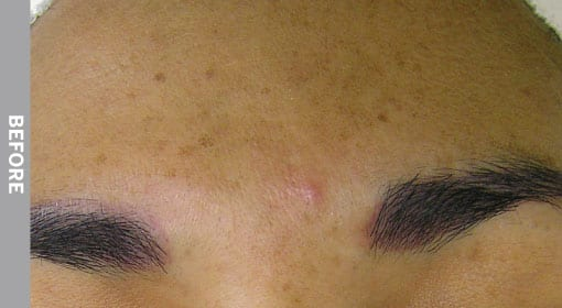 hydrafacial Hyperpigmentation-Before
