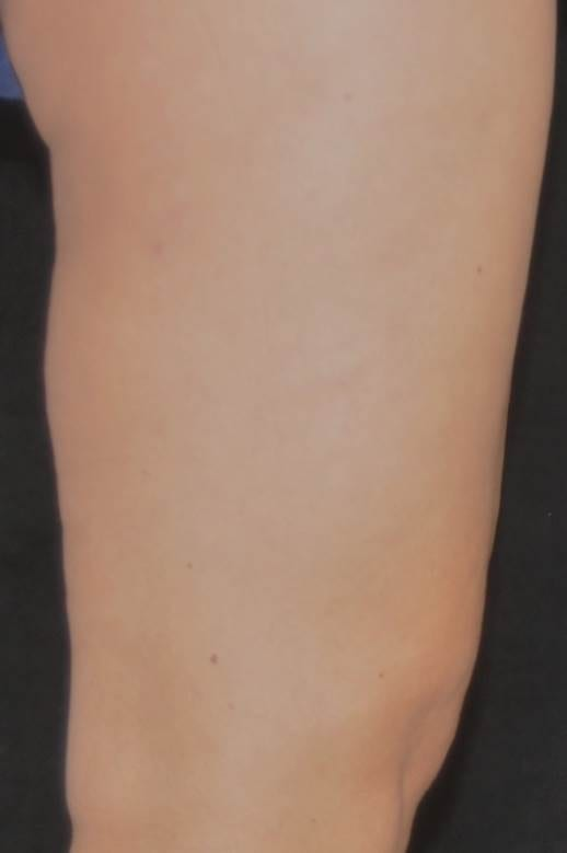 velashape after leg