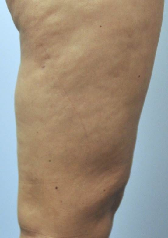 velashape before leg