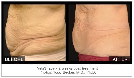 velashape laxity stomach